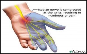 carpal-tunnel-syndrome-anatomy-14